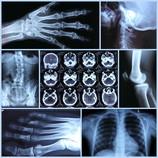 Röntgenbilder und CT-Bilder sind für die Diagnostik nötig.