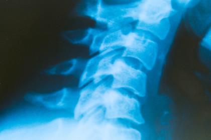 Rückenschmerzen müssen oft nicht sein! Wir sind spezialisiert auf den Bewegungsapparat.